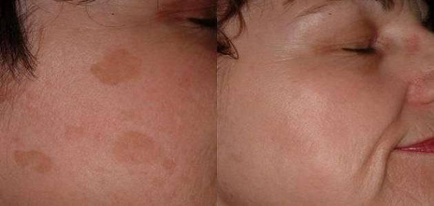 صورة بقع بنية في الوجه , ما اسباب ظهور بقع بنية فى الوجه