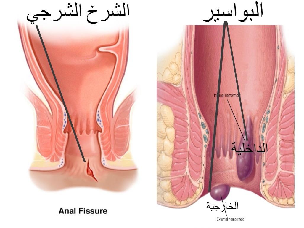 صورة علاج البواسير والشرخ , علاج مضمون للبواسبر والشرخ