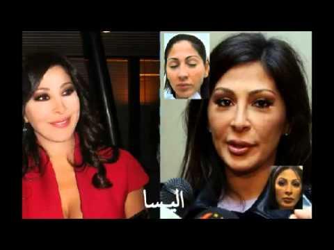 صورة الممثلين قبل وبعد عمليات التجميل , عمليات التجميل والممثلين قبل وبعد