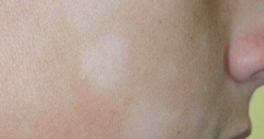 صورة البقع البيضاء في الوجه , علاج النقط البياضء فى الوجه