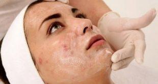 صورة ازالة حبوب الوجه , اضرار حبوب الوجه والحماية منها