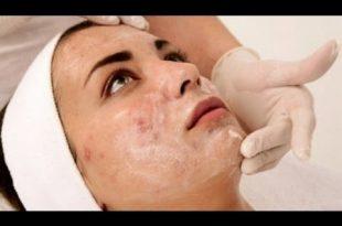 صور ازالة حبوب الوجه , اضرار حبوب الوجه والحماية منها
