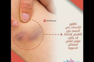 صورة معلومات طبية , اجمل وافيد المعلومات الماخذوة من الاطباء