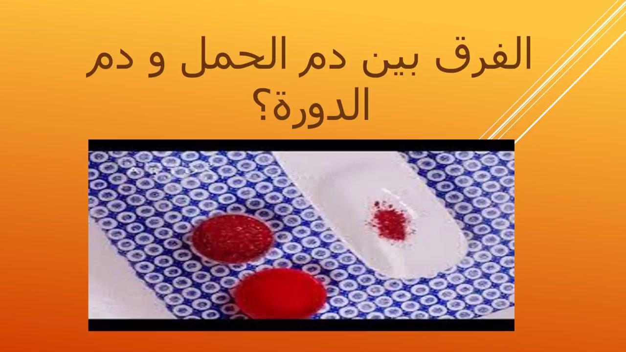 صور الفرق بين دم الدورة ودم الحمل , كيف تفرقين بين نزول دم الحمل ودم الحيض
