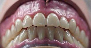 صورة طقم اسنان , ما اهمية التركيبات الصناعيه