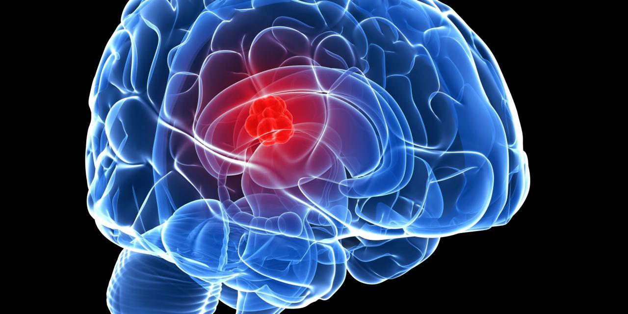 صورة سرطان المخ اعراضه , اعراض سرطان المخ