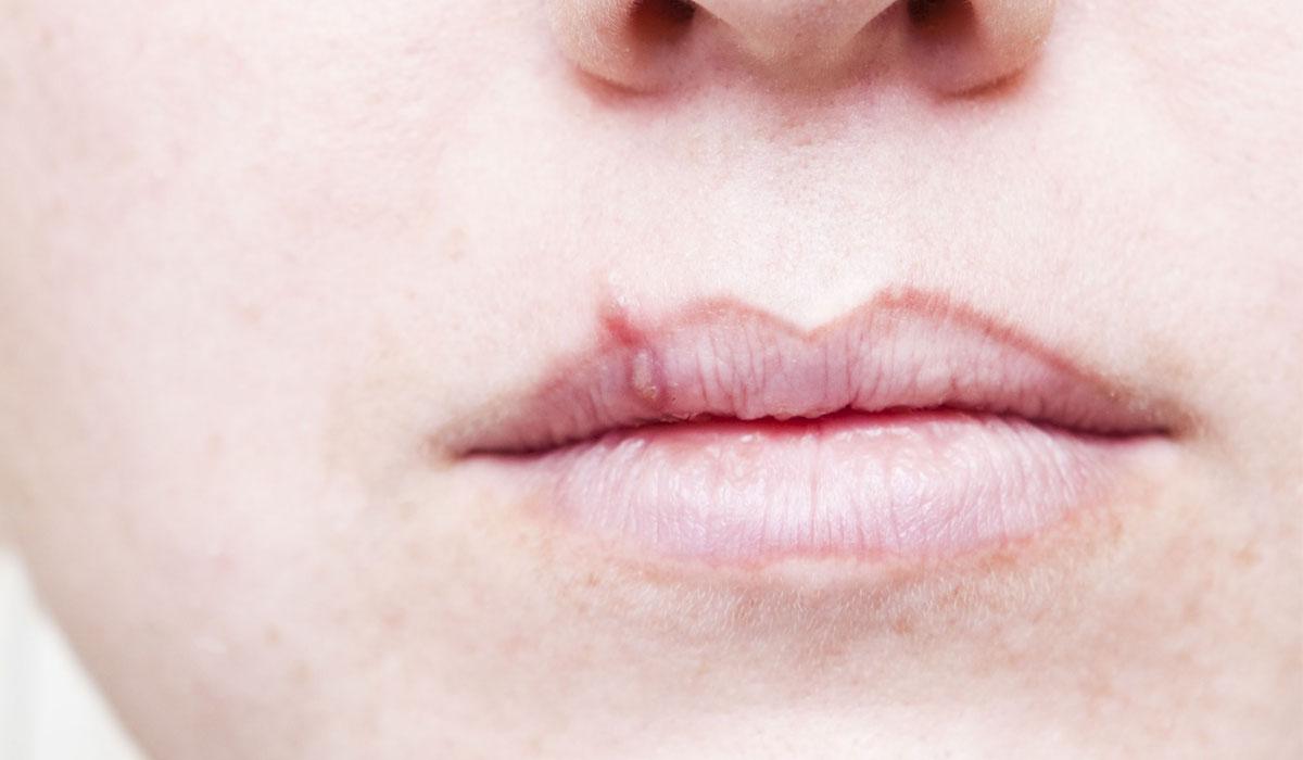 صورة علاج حبة السخونة في الفم , اسباب وعلاج حبة السخونة في الفم