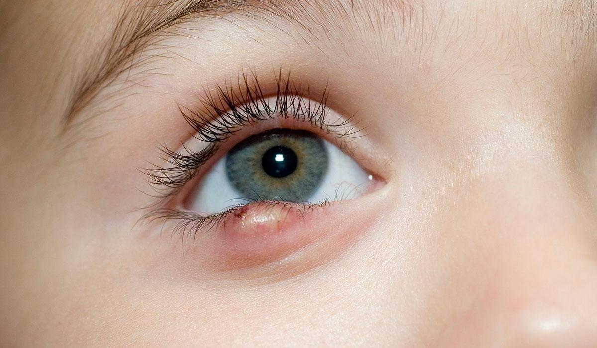 صورة علاج الكيس الدهني في العين بدون جراحة , طريقة علاج الكيس الدهني في العين بدون جراحة