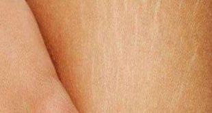 صور علاج التشققات البيضاء جابر القحطاني , طريقة علاج التشققات البيضاء