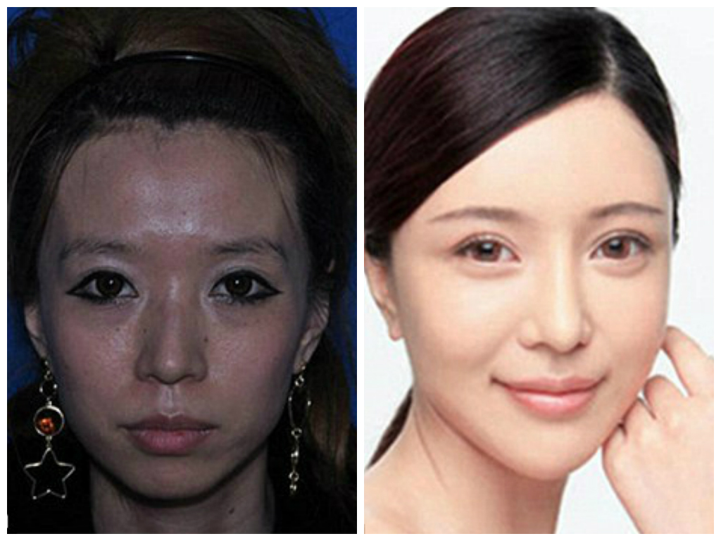 صور تجميل في كوريا , عمليات التجميل في كوريا