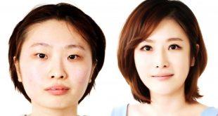 صورة تجميل في كوريا , عمليات التجميل في كوريا