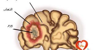 صورة اعراض سرطان المخ عند البالغين , علاج سرطان المخ