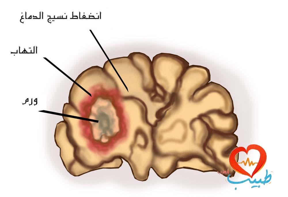 صور اعراض سرطان المخ عند البالغين , علاج سرطان المخ