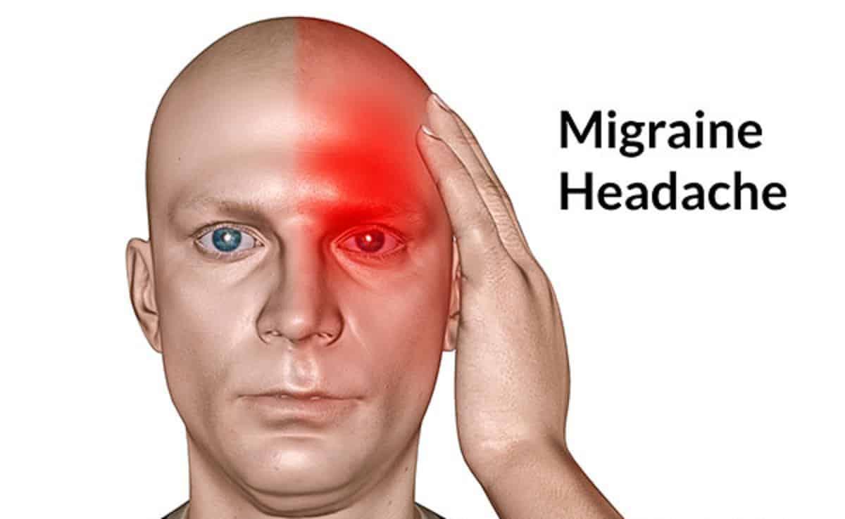 صورة ما هو علاج الصداع النصفي , طرق معالجة الشقيقه او الصداع النصفي