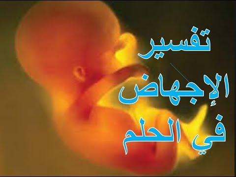 صور الاجهاض في الحلم , تفسير رؤية اسقاط الجنين فى المنام