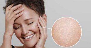 صور اضرار بياض البيض , مساوىء بياض البيض على الشعر والبشره