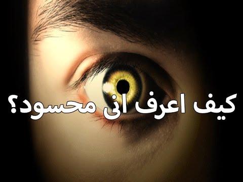 صورة اثار الحسد على الجسم , علامات العين على الجسد