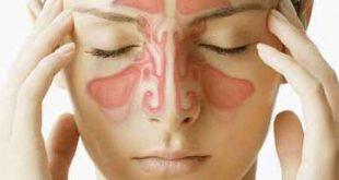 صورة علاج حساسية الجيوب الانفية , نصائح للتدواى من مشكلة الجيوب الانفيه