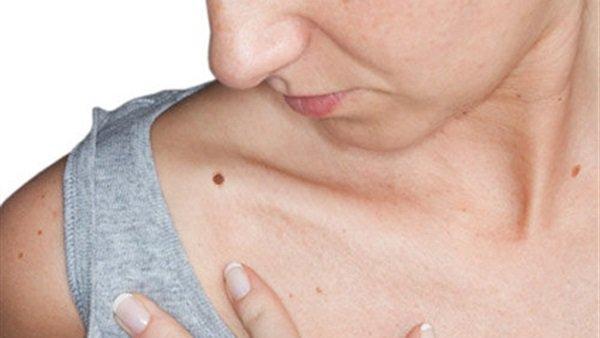 صورة ماهي اعراض سرطان الجلد , مؤشرات الاصابه بسرطان الجلد