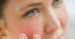 صورة ما سبب احمرار الوجه , لماذا يحمر جلد البشره