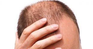صورة تجربة زراعة الشعر في تركيا بالصور , الحل موجود في تركيا