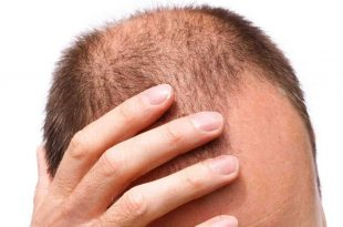 صور تجربة زراعة الشعر في تركيا بالصور , الحل موجود في تركيا